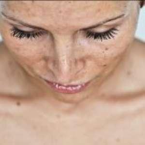 Как убрать пятна на коже после загара?