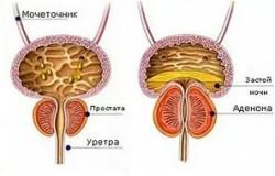 Причины возникновения и лечение простатита