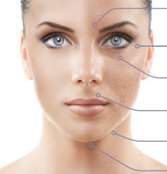 Комбинированная чистка – основа косметологии