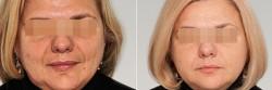 Гиалуроновая кислота – панацея от возраста?